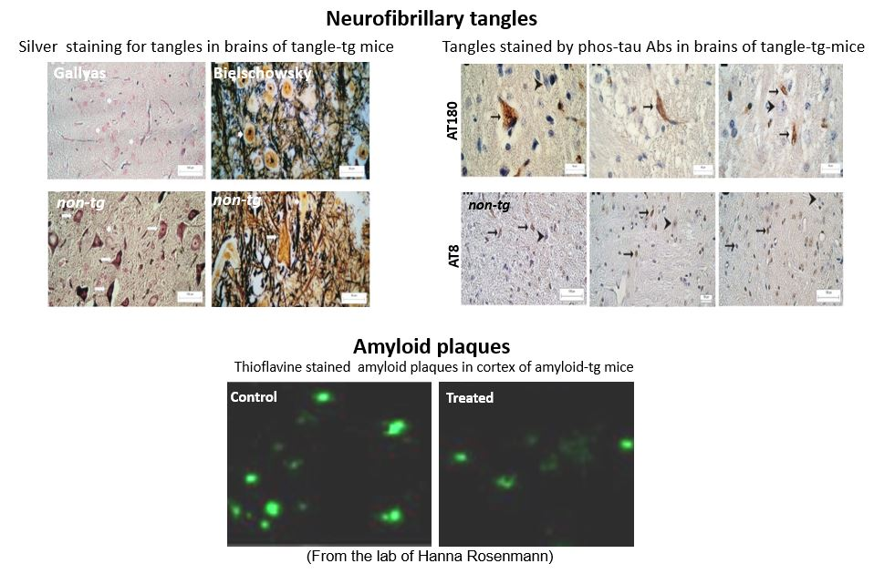 Neurodegeneration 1