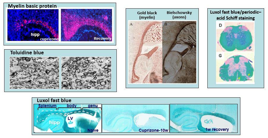 Neurodegeneration 2